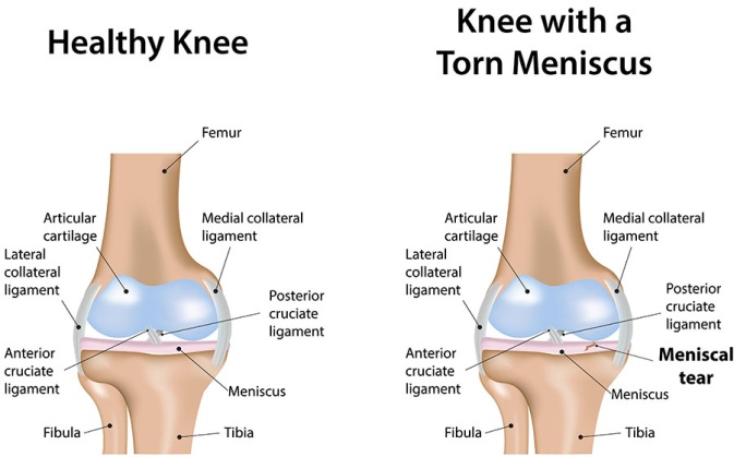 Knee meniscus tear the most common signs and symptoms of knee torn meniscus are ccuart Images
